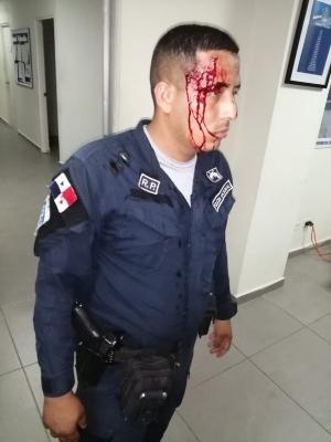 Un agente policial resultó herido al tratar de poner orden en una fiesta en Alto de Los Lagos
