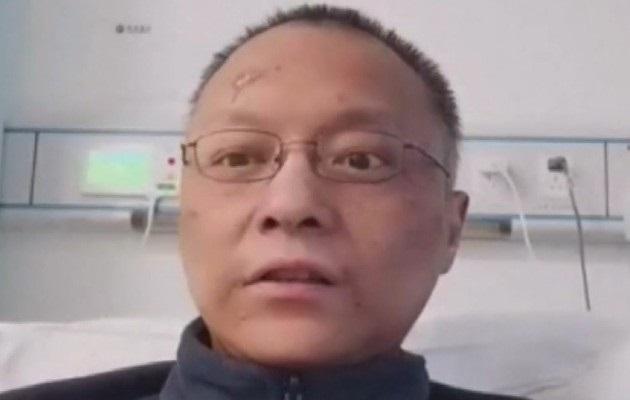 Las imágenes de la cara visiblemente oscurecida de los doctores Yi Fan y Hu Weihen, del Hospital Central de Wuhan, se volvieron virales primero en las redes chinas y posteriormente dieron el salto a las plataformas occidentales.