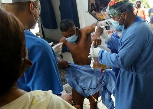 Una de las personas quemadas llega al Hospital Central Julio Méndez Barreneche en Santa Marta (Colombia). Fotos: EFE.