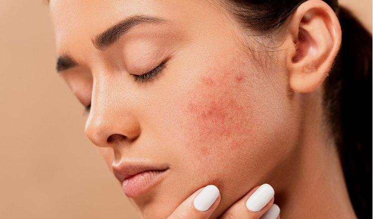 La dermatitis atópica es una deficiencia en la barrera de la piel. Pixabay