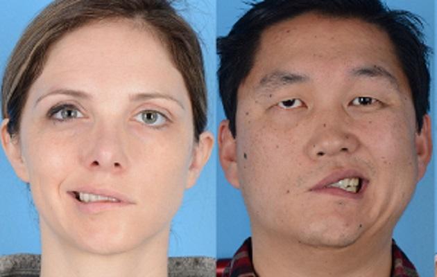 Así luce el rostro de una persona con parálisis de Bell. Foto ilustrativa.