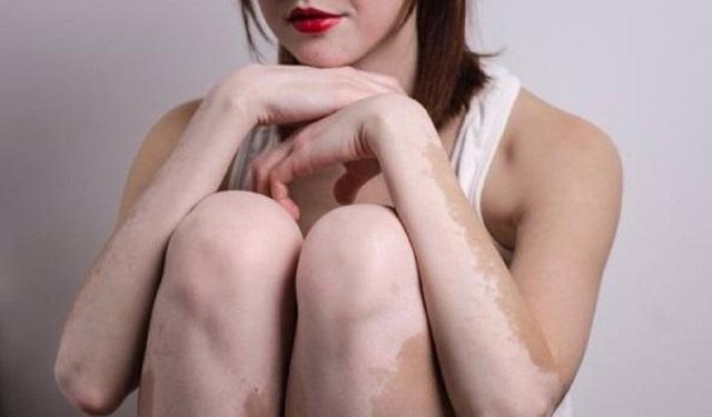El 1% de la población mundial padece vitiligo. Foto: Ilustrativa / Pixabay