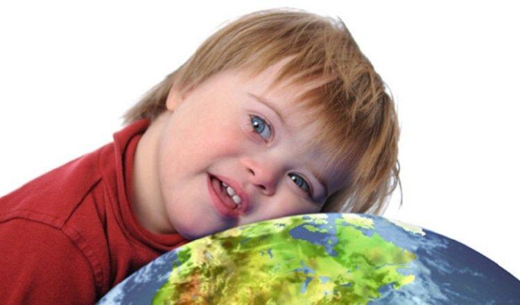 La incidencia estimada del síndrome de Down en el mundo es de 1 de cada 1.000. Pixabay