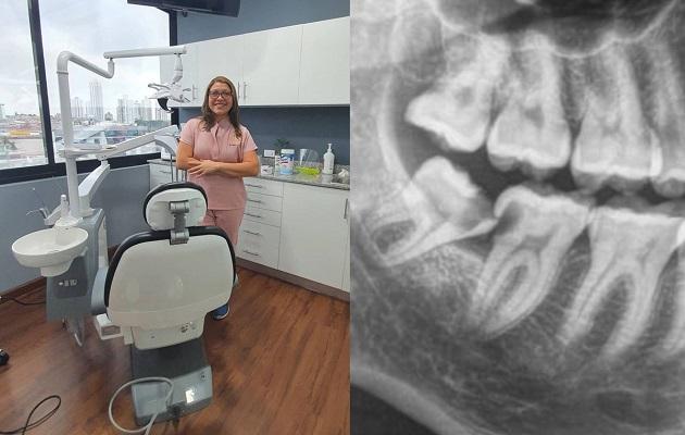La doctora Yesneira Rodríguez aconseja realizar la extracción antes de los 25 años. Foto: Cortesía Y. Rodríguez