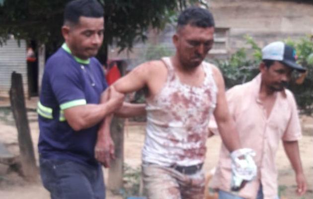 El macheteado (centro) también fue brutalmente golpeado. Foto: Mayra Madrid.