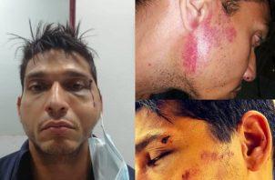 El taxista aseguró que presentó la denuncia sobre este supuesto abuso policial.