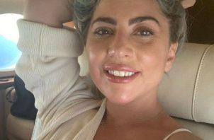 A Lady Gaga le robaron a sus dos perros: Koji y Gustav. Foto: Instagram