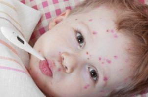 En los niños con un sistema inmunitario normal, la varicela no suele ser grave.  Foto: Ilustrativa /Pixabay