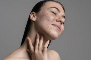 El melasma se produce por el aumento en la producción de melanina. Ilustrativa / Freepik