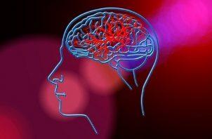 La terapia del lenguaje suele ayudar a personas con afección del habla por un accidente cerebrovascular. Foto: Ilustrativa / Pixabay